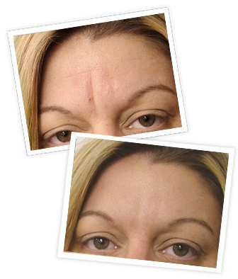 Deep Wrinkle Treatment